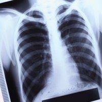Епідситуація із захворюваності на туберкульоз на Тернопільщині непередбачувана